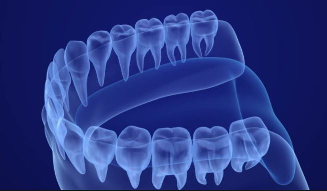 Digital x-ray view of a tooth; intraoral camera and dental laser are also available at The Lewisville Dentist.